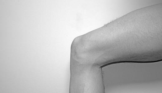 変形性膝関節症とグルコサミンやコンドロイチンの関係